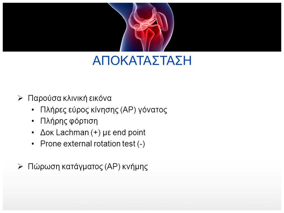 ΑΠΟΚΑΤΑΣΤΑΣΗ  Παρούσα κλινική εικόνα •Πλήρες εύρος κίνησης (ΑΡ) γόνατος •Πλήρης φόρτιση •Δοκ Lachman (+) με end point •Prone external rotation test (