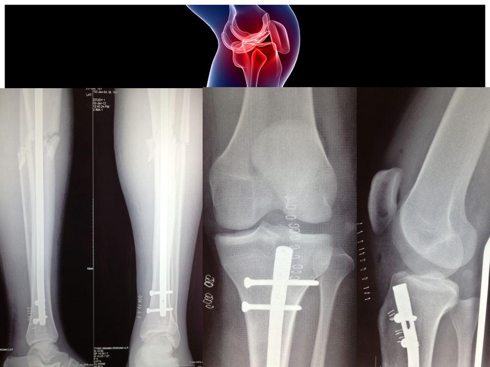 ΧΕΙΡΟΥΡΓΕΙΟ  Ενδομυελική ήλωση (ΑΡ) κνήμης με ήλο Stryker από ατσάλι  Διεγχειρητικά διαπιστώνεται ιδιαίτερη προσθιοπίσθια και οπισθιο- εξωτερικής αστάθεια (ΑΡ) γόνατος