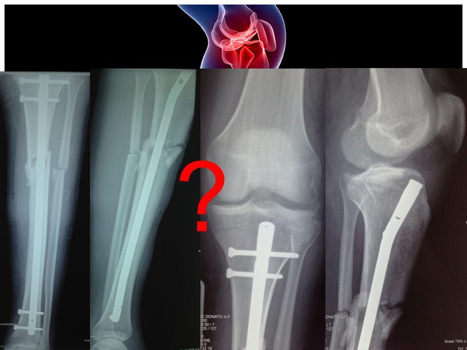 ΜΤΧ ΠΟΡΕΙΑ  Άμεσα μετεγχειρητικά ο ασθενής παρουσιάζει ΑΥ μη ελεγχόμενη και διακομίζεται σε Παθολογική κλινική για διερεύνηση (ιδιοπαθής)  Εξέρχεται από την Παθολογική περίπου 20 ημέρες μετά το χειρουργείο  Κλινική εικόνα: α) ΔΥΣΚΑΜΨΙΑ (ΑΡ) γόνατος β) Θετικές δοκιμασίες προσθιοπίσθιας και οπισθιο- εξωτερικής αστάθειας