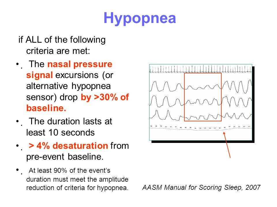 Ηypopnea if ALL of the following criteria are met: • The nasal pressure signal excursions (or alternative hypopnea sensor) drop by >30% of baseline.