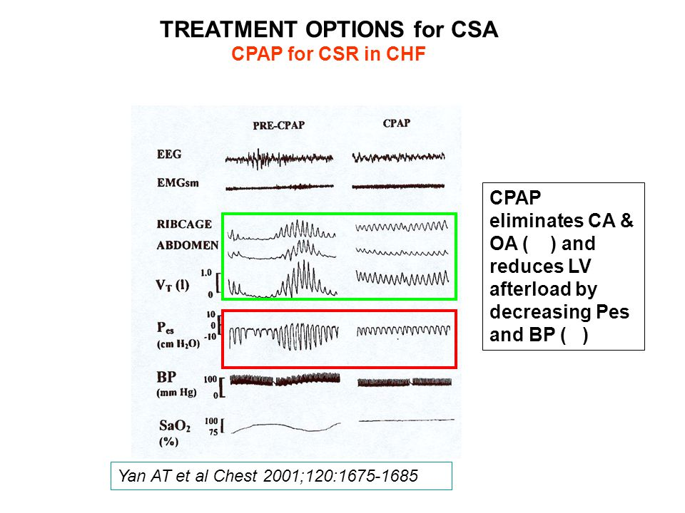 CPAP eliminates CA & OA ( ) and reduces LV afterload by decreasing Pes and BP ( ) TREATMENT OPTIONS for CSA CPAP for CSR in CHF Yan AT et al Chest 2001;120:1675-1685