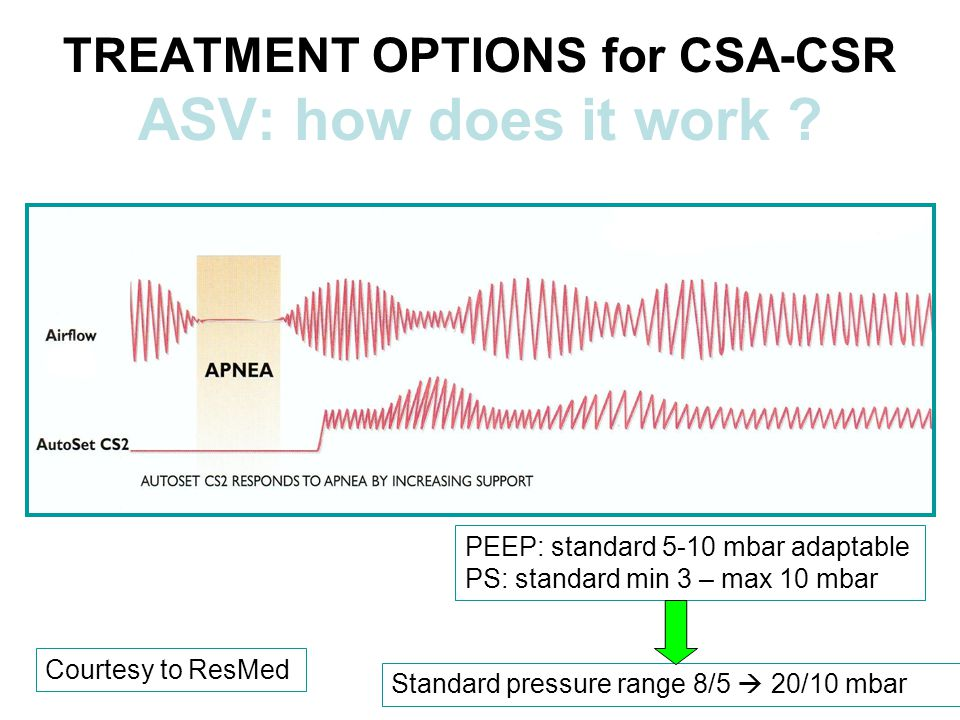 TREATMENT OPTIONS for CSA-CSR ASV: how does it work .