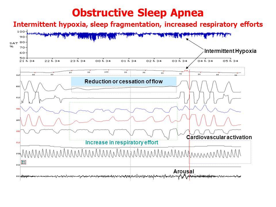 • έντονη ημερήσια υπνηλία •Ή τουλάχιστον 2 από τα παρακάτω •Αναφερόμενες διακοπές αναπνοής ή gasping •Συχνές αφυπνίσεις •Μη αναζωογονητικός ύπνος •Χρόνια κόπωση •Ελάττωση της συγκέντρωσης •ΚΑΙ > 5 αποφρακτικές άπνοιες/υπόπνοιες/hr ΑΠΟΦΡΑΚΤΙΚΟ ΣΥΝΔΡΟΜΟ ΑΠΝΟΙΩΝ ΥΠΟΠΝΟΙΩΝ ΣΤΟΝ ΥΠΝΟ (OSAHS)