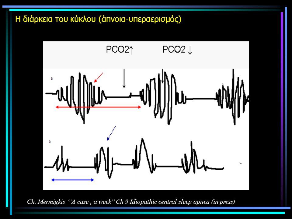 H διάρκεια του κύκλου (άπνοια-υπεραερισμός) Ch. Mermigkis ''A case, a week'' Ch 9 Idiopathic central sleep apnea (in press)