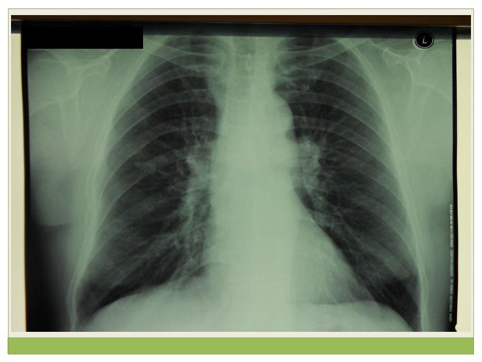 Ασθενής 42 ετών, πρώην καπνίστρια 6py (διακοπή προ 3ετίας), με νοσογόνο παχυσαρκία ΒΜΙ: 54, προσήλθε λόγω σταδιακής επιδείνωσης δύσπνοιας προσπαθείας σε ηρεμίας από 20ημέρου, με συνοδό ρινική συμφόρηση, οπισθορρινική έκκριση και παραγωγικό βήχα με βλεννοπυώδη απόχρεμψη.