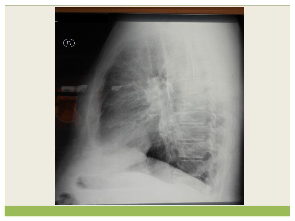 Σε συμπτωματικούς αθματικούς, οι διαταραχές της αναπνοής στον ύπνο σχετίζονται με ↓eNO, λιγότερο ηωσινοφιλική και περισσότερο ουδετεροφιλική φλεγμονή στο άσθμα Teodorescu et al., AJRCCM 2009