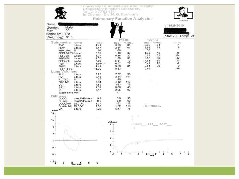 Αντικειμενική εξέταση  Ακρόαση : μουσικοί ρόγχοι άμφω  RR: 22/min, HR: 92/min, ΑΠ: 155/75 mmHg  Κυάνωση: (-), Πληκτροδακτυλία: (-), Οιδήματα: (-)  Λοιπά συστήματα: κφ
