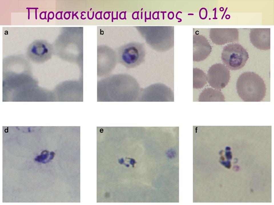 Παρασκεύασμα αίματος •Το είδος δεν μπορούσε να προσδιορισθεί με βεβαιότητα βάσει της μορφολογίας •Υποψία για P.malariae –RBC φυσιολογικού μεγέθους