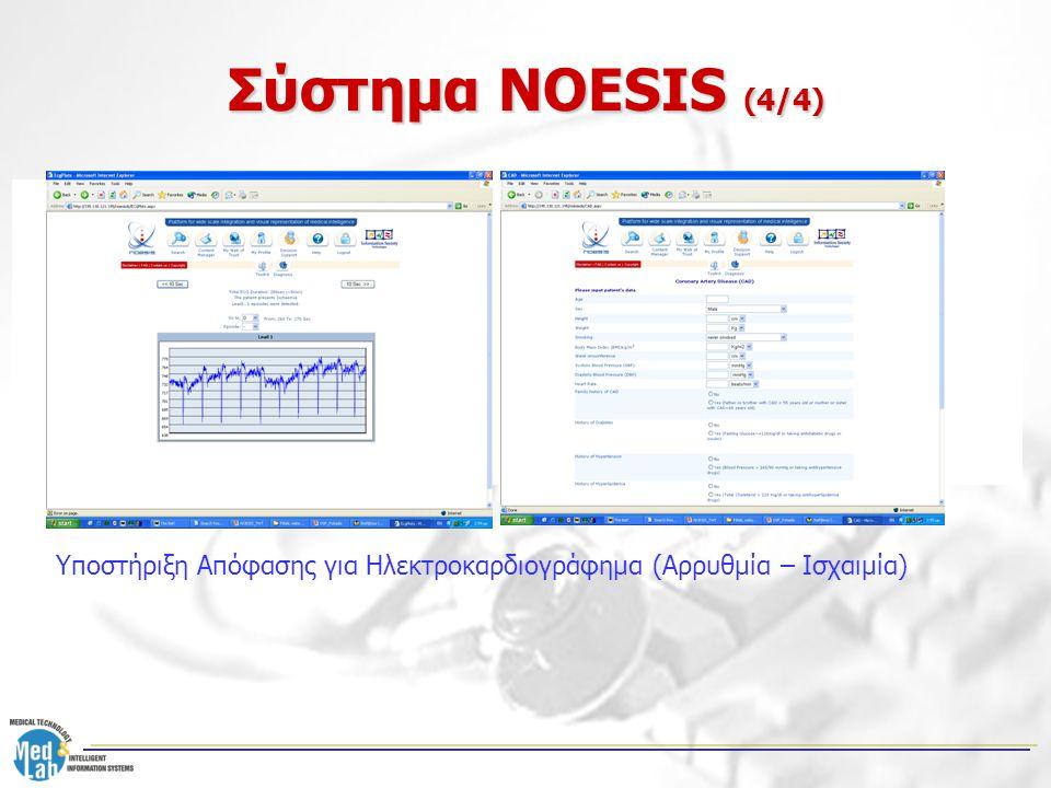 """Σύστημα NOESIS (4/4) NOESIS Server NOESIS remote user Eye-gaze monitoring H/W Αποστολή των """"Attention Reports"""" στο Server • Επεξεργασία Φυσικής Γλώσσα"""