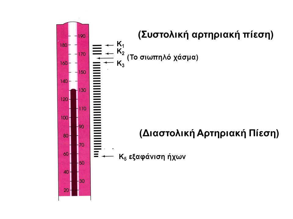 (Συστολική αρτηριακή πίεση) Κ1Κ1 Κ2Κ2 (Το σιωπηλό χάσμα) Κ3Κ3 (Διαστολική Αρτηριακή Πίεση) Κ 5 εξαφάνιση ήχων