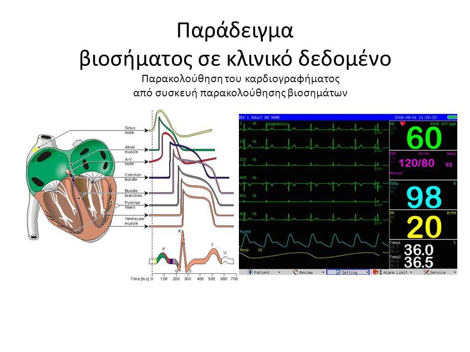 Παράδειγμα βιοσήματος σε κλινικό δεδομένο Παρακολούθηση του καρδιογραφήματος από συσκευή παρακολούθησης βιοσημάτων