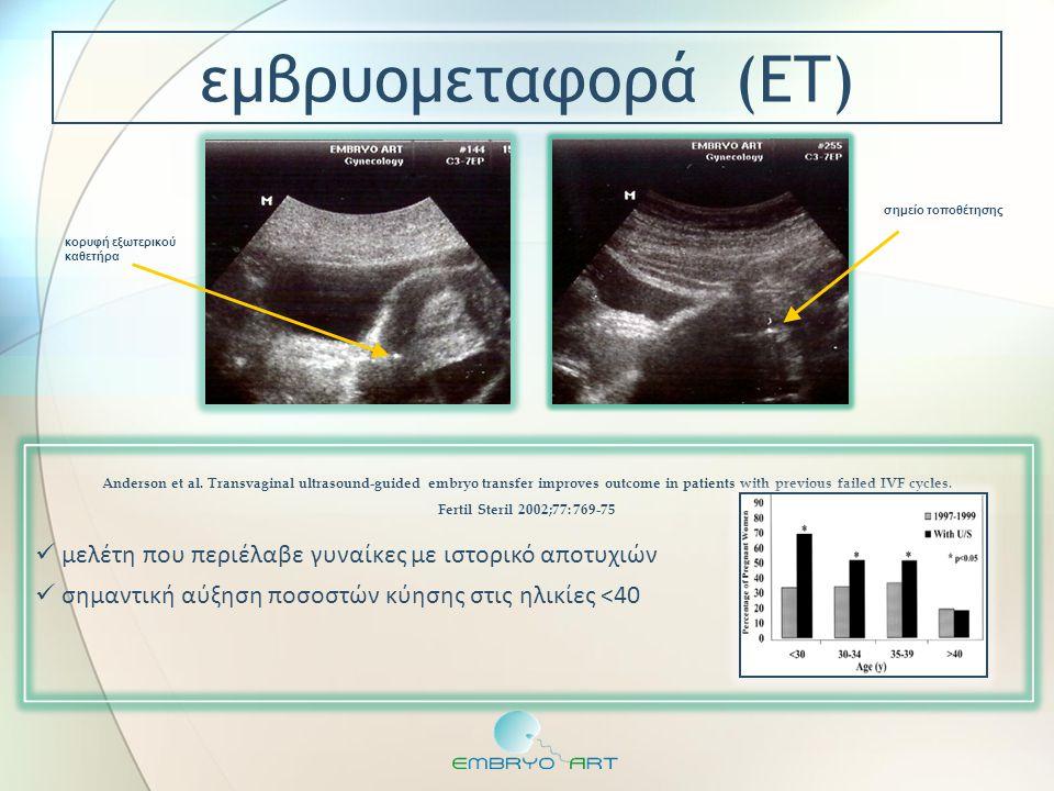  μελέτη που περιέλαβε γυναίκες με ιστορικό αποτυχιών  σημαντική αύξηση ποσοστών κύησης στις ηλικίες <40 Anderson et al. Transvaginal ultrasound-guid