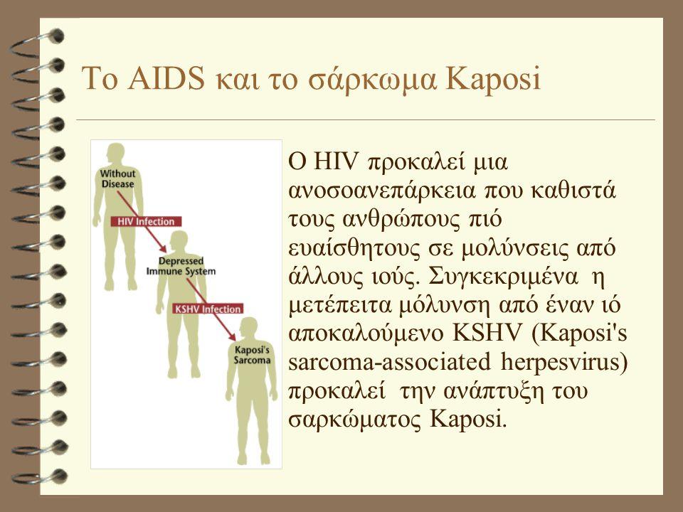 Το AIDS και το σάρκωμα Kaposi •Ο HIV προκαλεί μια ανοσοανεπάρκεια που καθιστά τους ανθρώπους πιό ευαίσθητους σε μολύνσεις από άλλους ιούς.
