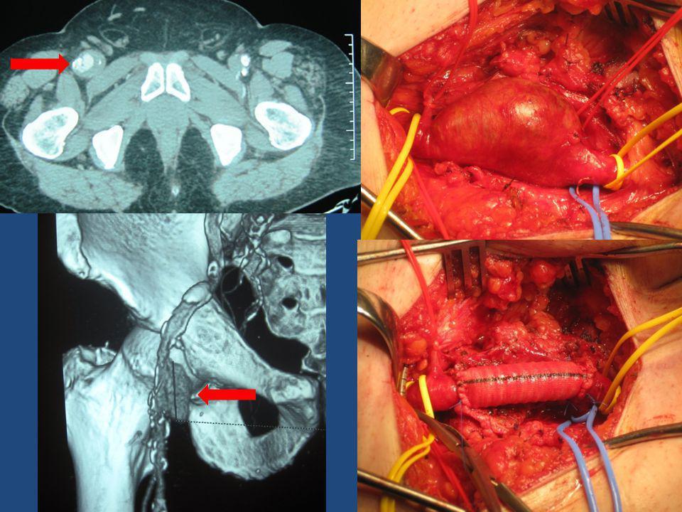 Ανευρύσματα εν τω βάθει μηριαίας • Χειρουργική αποκατάσταση (ειδικά αν η SFA έχει στενώσεις) • Απολίνωση (κεντρική μόνο αρκεί?) • ή εμβολισμός με coils αν δεν συνυπάρχει αθηροσκληρυντική νόσος στην SFA
