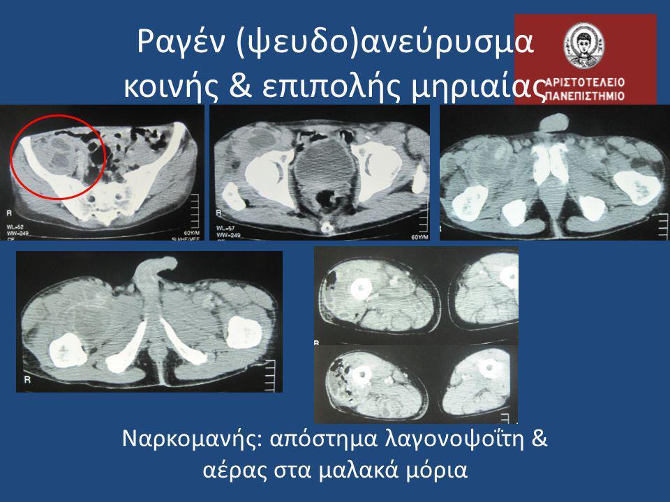 Προγνωστική σημασία • η πιθανότητα οξείας θρόμβωσης του ανευρύσματος στα 3 χρόνια είναι: • 36% όταν το πόδι έχει φυσιολογικές σφύξεις • 86% όταν το πόδι δεν έχει σφύξεις!
