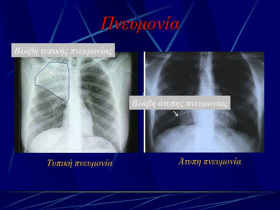 Τυπική πνευμονία Άτυπη πνευμονία Πνευμονία Βλάβη άτυπης πνευμονίας Βλάβη τυπικής πνευμονίας