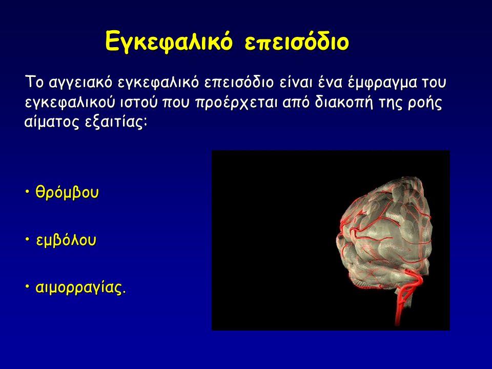 Εγκεφαλικό επεισόδιο Το αγγειακό εγκεφαλικό επεισόδιο είναι ένα έμφραγμα του εγκεφαλικού ιστού που προέρχεται από διακοπή της ροής αίματος εξαιτίας: • θρόμβου • εμβόλου • αιμορραγίας.