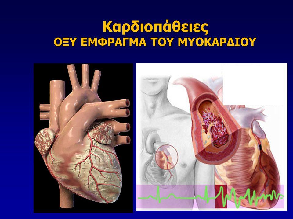 9000-10000 STEMI στην Ελλάδα 9000-10000 STEMI στην Ελλάδα ~3000-4000 STEMI στο Λεκανοπέδιο Αττικής ( 1 STEMI ανά 1000 κατοίκους) ~3000-4000 STEMI στο Λεκανοπέδιο Αττικής ( 1 STEMI ανά 1000 κατοίκους) Mόλις στο 9% των STEMI <200pPCI million/year Mόλις στο 9% των STEMI <200pPCI million/year Επίπτωση εμφράγματος (STEMI)