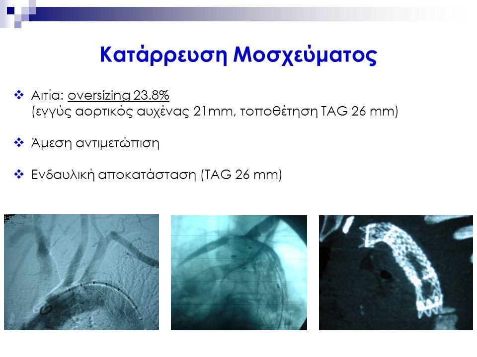  Αιτία: oversizing 23.8% (εγγύς αορτικός αυχένας 21mm, τοποθέτηση TAG 26 mm)  Άμεση αντιμετώπιση  Ενδαυλική αποκατάσταση (TAG 26 mm) Κατάρρευση Μοσ
