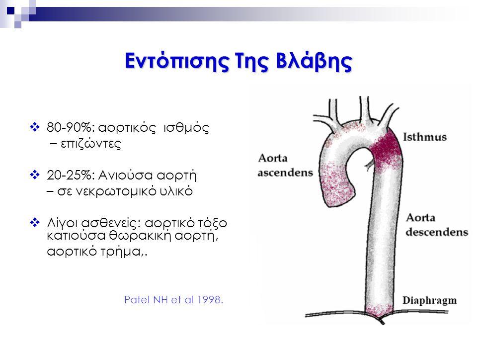 Εντόπισης Της Βλάβης  80-90%: αορτικός ισθμός – επιζώντες  20-25%: Ανιούσα αορτή – σε νεκρωτομικό υλικό  Λίγοι ασθενείς: αορτικό τόξο κατιούσα θωρα