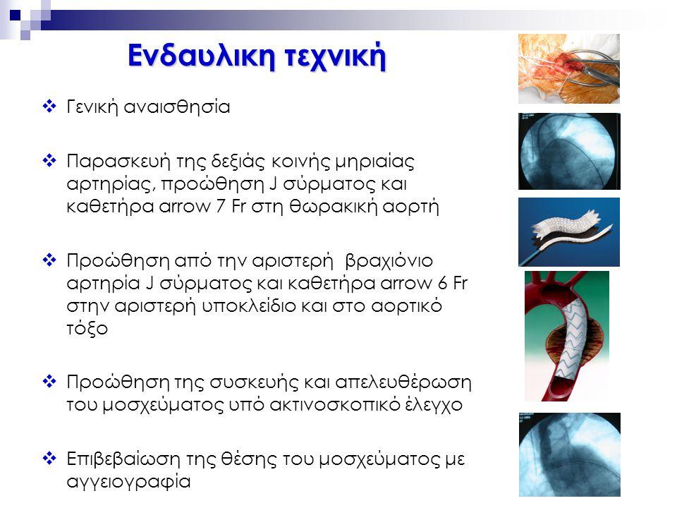 Διαχείριση Ασθενούς III  Αιμοδυναμικά σταθερός ασθενής ↓ Ενδαυλική αντιμετώπιση ↓ Αντένδειξη ; ↓ Ανοιχτή αποκατάσταση J Thorac Cardiovasc Surg 2006;132:1037-4 1