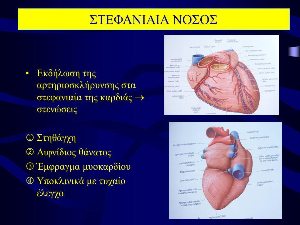•Εκδήλωση της αρτηριοσκλήρυνσης στα στεφανιαία της καρδιάς  στενώσεις  Στηθάγχη  Αιφνίδιος θάνατος  Έμφραγμα μυοκαρδίου  Υποκλινικά με τυχαίο έλεγχο ΣΤΕΦΑΝΙΑΙΑ ΝΟΣΟΣ