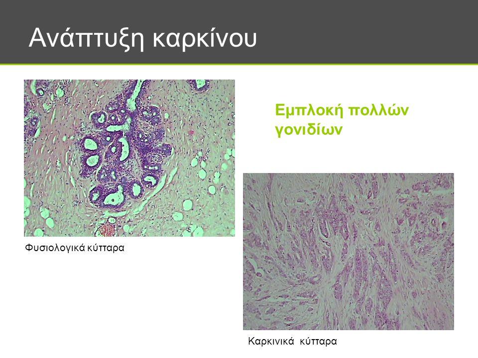 Ανάπτυξη καρκίνου Φυσιολογικά κύτταρα Καρκινικά κύτταρα Εμπλοκή πολλών γονιδίων