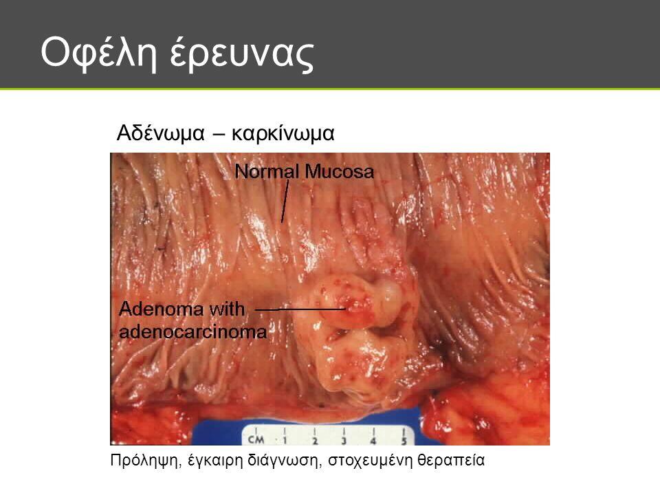 Οφέλη έρευνας Αδένωμα – καρκίνωμα Πρόληψη, έγκαιρη διάγνωση, στοχευμένη θεραπεία