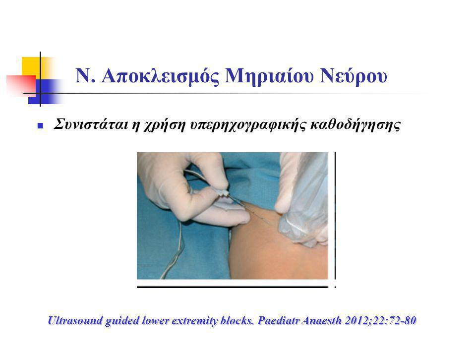 Ν. Αποκλεισμός Μηριαίου Νεύρου  Συνιστάται η χρήση υπερηχογραφικής καθοδήγησης Ultrasound guided lower extremity blocks. Paediatr Anaesth 2012;22:72-
