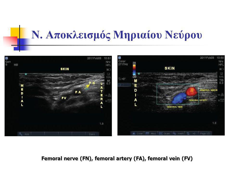Ν. Αποκλεισμός Μηριαίου Νεύρου Femoral nerve (FN), femoral artery (FA), femoral vein (FV)