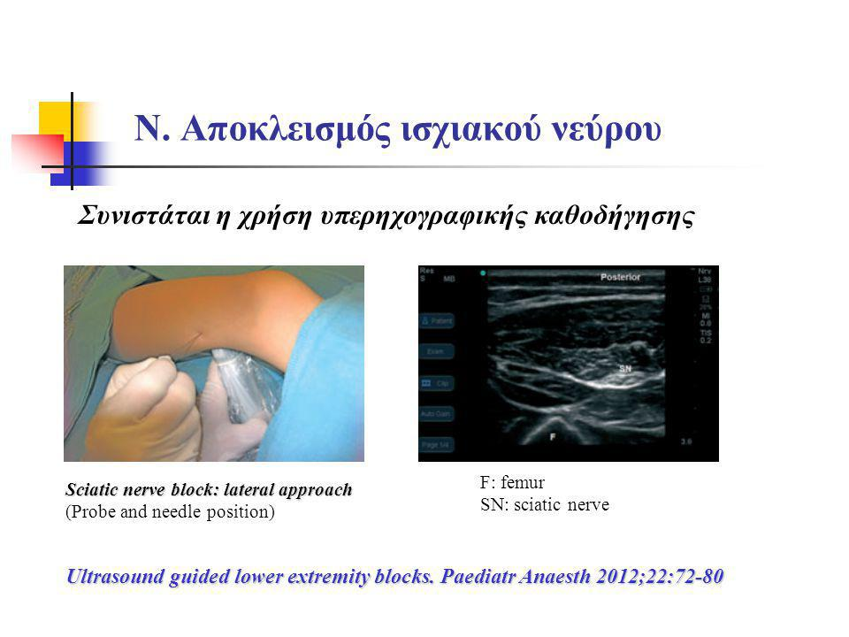 Ν. Αποκλεισμός ισχιακού νεύρου Ultrasound guided lower extremity blocks. Paediatr Anaesth 2012;22:72-80 Sciatic nerve block: lateral approach (Probe a