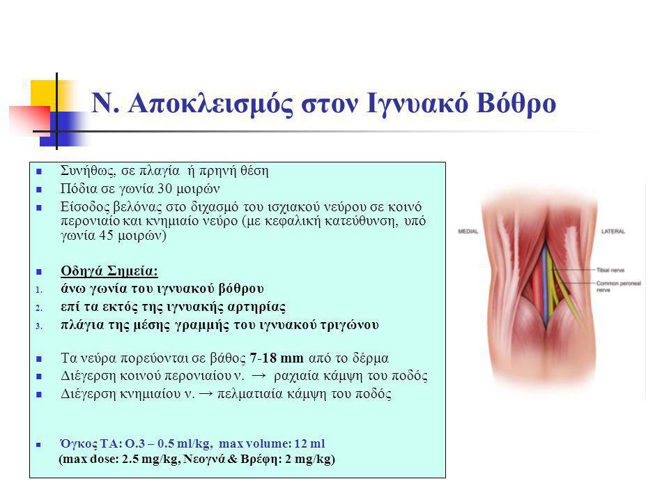 Ν. Αποκλεισμός στον Ιγνυακό Βόθρο  Συνήθως, σε πλαγία ή πρηνή θέση  Πόδια σε γωνία 30 μοιρών  Είσοδος βελόνας στο διχασμό του ισχιακού νεύρου σε κο