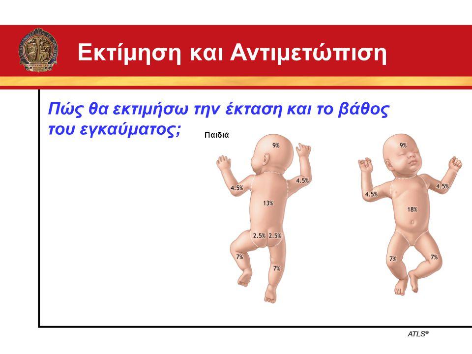 Εκτίμηση και Αντιμετώπιση Πώς θα εκτιμήσω την έκταση και το βάθος του εγκαύματος; Παιδιά