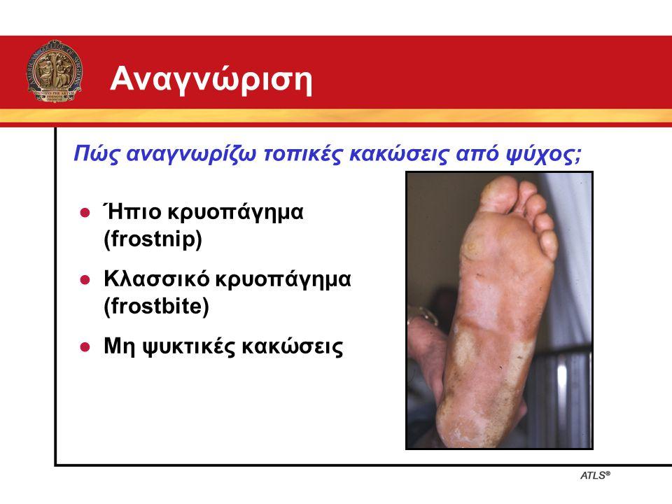 Αναγνώριση ● Ήπιο κρυοπάγημα (frostnip) ● Κλασσικό κρυοπάγημα (frostbite) ● Μη ψυκτικές κακώσεις Πώς αναγνωρίζω τοπικές κακώσεις από ψύχος;