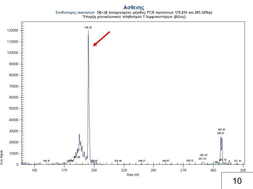 Ασθενης Συνδυασμός εκκινητών: Dβ+Jβ (αναμενόμενο μέγεθος PCR προϊόντων 170-210 και 285-325bp) Ύπαρξη μονοκλωνικού πληθυσμού Τ λεμφοκυττάρων (βέλος) 10