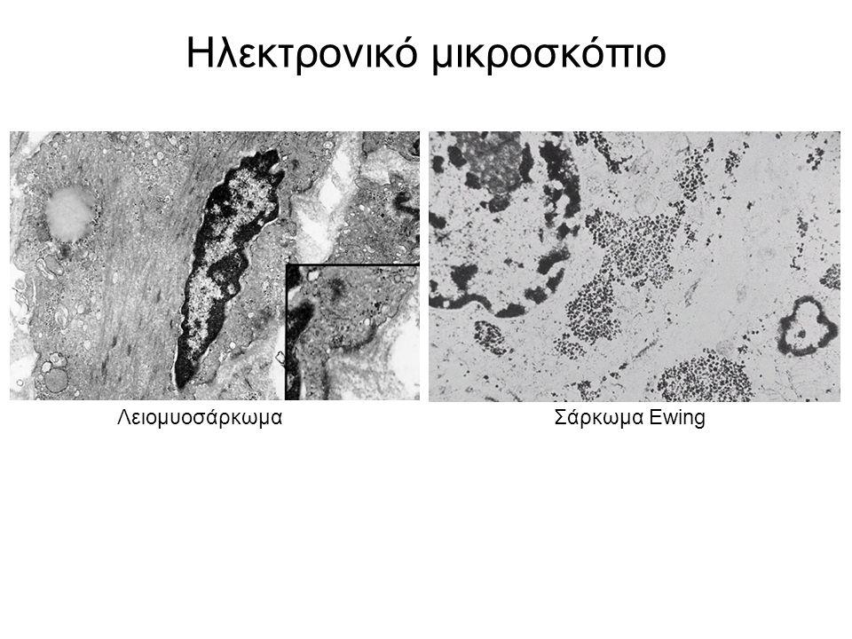Ηλεκτρονικό μικροσκόπιο ΛειομυοσάρκωμαΣάρκωμα Ewing