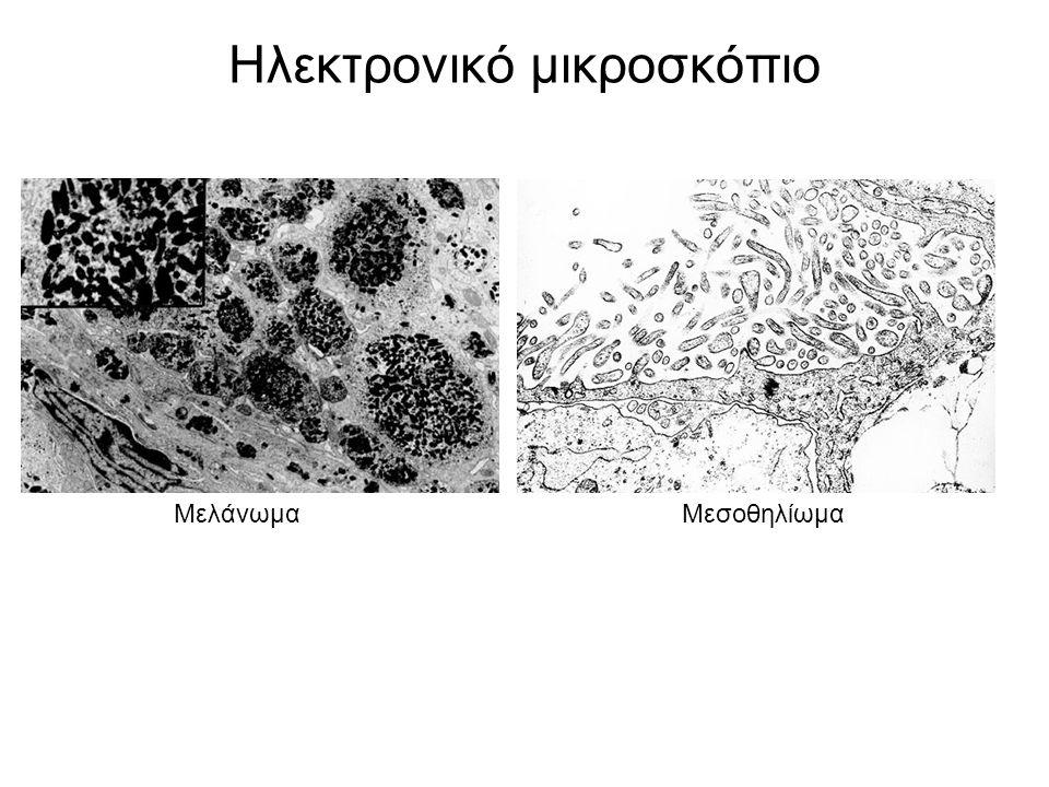 Ηλεκτρονικό μικροσκόπιο ΜελάνωμαΜεσοθηλίωμα