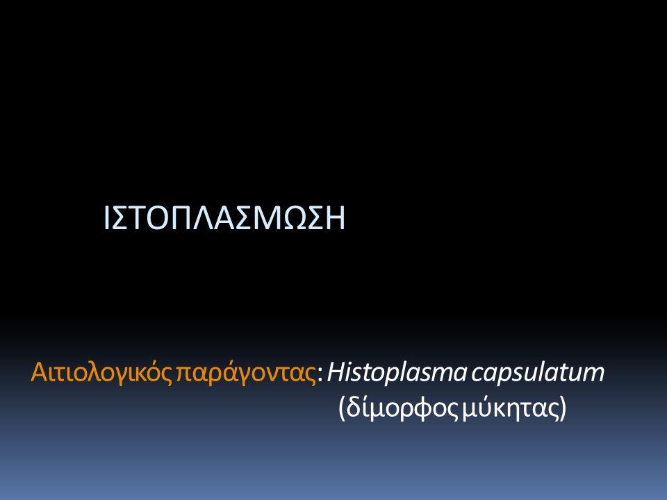Αιτιολογικός παράγοντας: Histoplasma capsulatum (δίμορφος μύκητας) ΙΣΤΟΠΛΑΣΜΩΣΗ
