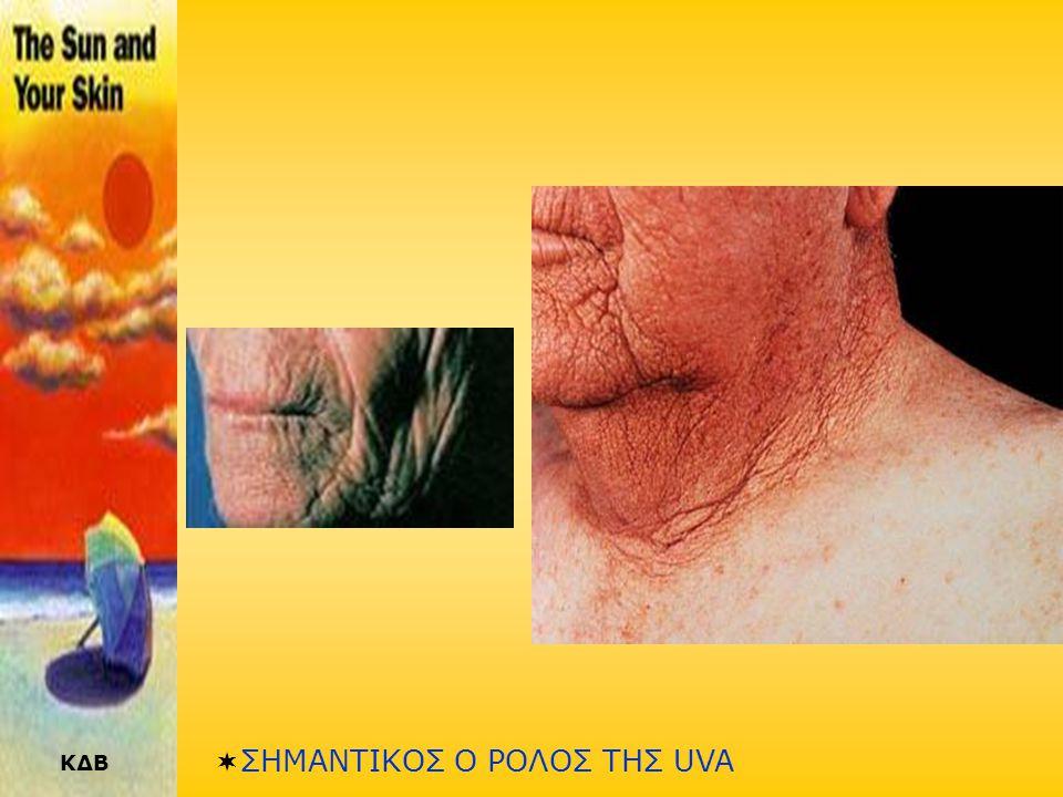 ΚΔΒ ΦΩΤΟΓΗΡΑΝΣΗ (2) •Το δέρμα αρχίζει και φαίνεται θαμπό, χαλαρό και μαλακό, γίνεται λεπτότερο, χάνει το λίπος του και γίνεται πιο πλαδαρό. •Ταυτοχρόν