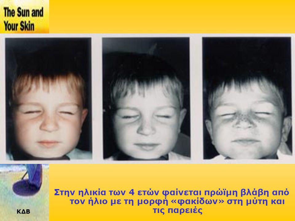 ΚΔΒ ΦΩΤΟΓΗΡΑΝΣΗ : ΑΘΡΟΙΣΤΙΚΗ ΕΠΙΔΡΑΣΗ ΤΗΣ ΧΡΟΝΙΑΣ ΕΚΘΕΣΗΣ ΣΤΟΝ ΗΛΙΟ Στην ηλικία των 18 μηνών, οι βλάβες δεν είναι ακόμα ορατές