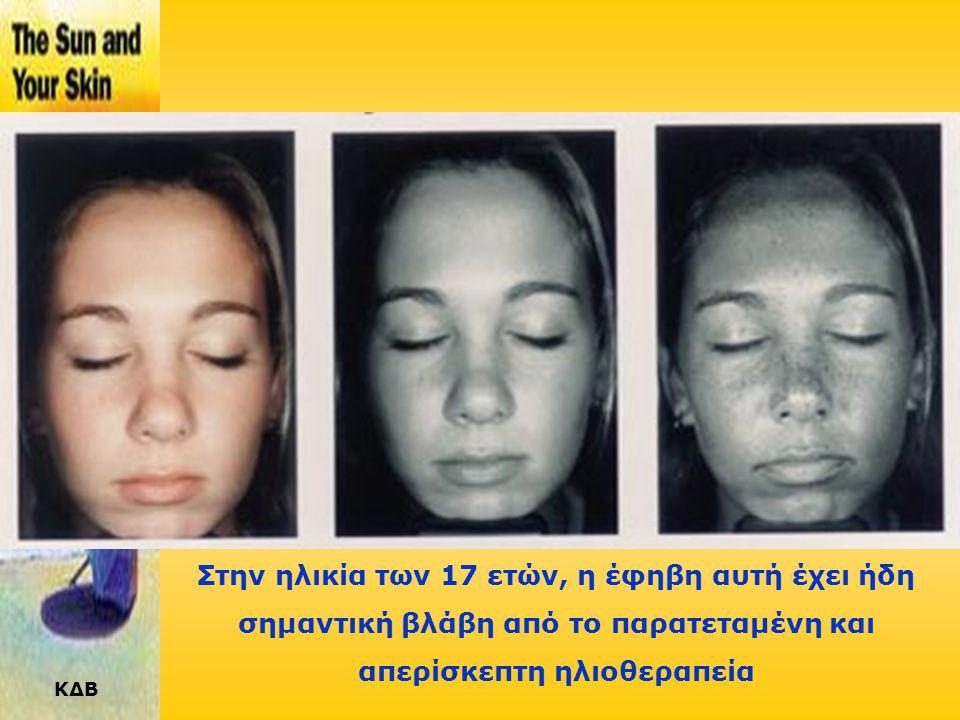 ΚΔΒ Στην ηλικία των 4 ετών φαίνεται πρώϊμη βλάβη από τον ήλιο με τη μορφή «φακίδων» στη μύτη και τις παρειές