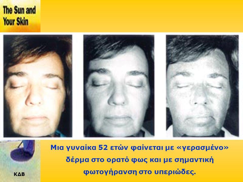 ΚΔΒ Σε μια γυναίκα 37 ετών, οι βλάβες φαίνονται ξεκάθαρα στο υπεριώδες φως.