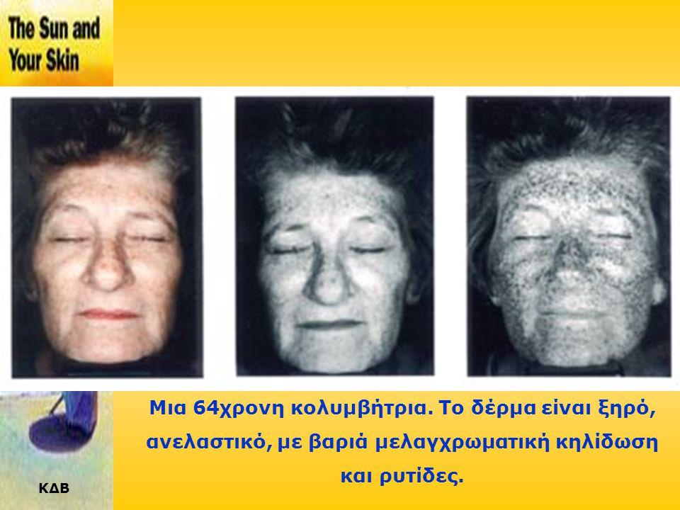 ΚΔΒ Μια γυναίκα 52 ετών φαίνεται με «γερασμένο» δέρμα στο ορατό φως και με σημαντική φωτογήρανση στο υπεριώδες.