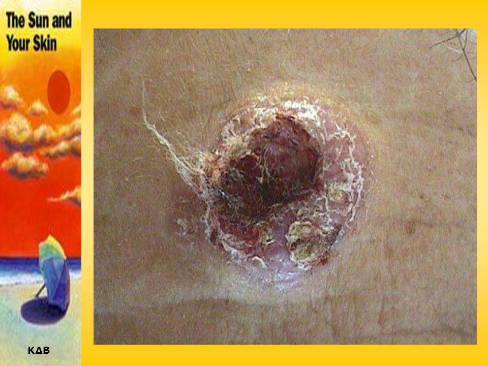 ΚΔΒ ΒΑΣΙΚΟΚΥΤΤΑΡΙΚΟ ΚΑΡΚΙΝΩΜΑ (ΕΠΙΘΗΛΙΩΜΑ) •Η συχνότερη μορφή δερματικού καρκίνου (>75%). •Εμφανίζεται κυρίως σε υπερ-εκτεθειμένες στον ήλιο περιοχές