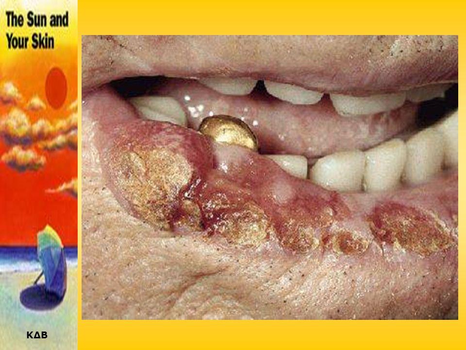 ΑΚΑΝΘΟΚΥΤΤΑΡΙΚΟ ΚΑΡΚΙΝΩΜΑ (ΕΠΙΘΗΛΙΩΜΑ) •Η 2η σε συχνότητα μορφή δερματικού καρκίνου (20%). •Εμφανίζεται κυρίως και αυτή σε υπερ-εκτεθειμένες στον ήλιο