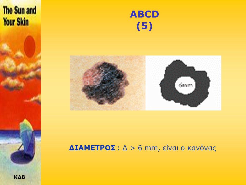 ΚΔΒ ABCD (4) ΧΡΩΜΑ ΑΝΟΜΟΙΟΜΟΡΦΟ: Διάφορες καφέ, σκούρες ή μαύρες αποχρώσεις, μπορεί να είναι τα πρώτα σημάδια Μελανώματος. Καθώς το Μελάνωμα εξελίσσετ