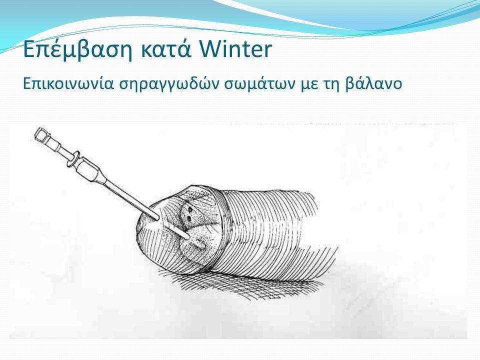 Επέμβαση κατά Winter Επικοινωνία σηραγγωδών σωμάτων με τη βάλανο