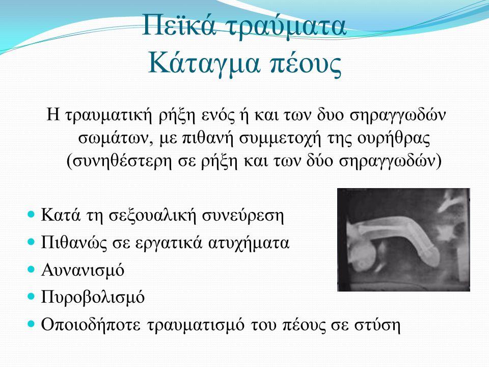 Πεϊκά τραύματα Κάταγμα πέους Η τραυματική ρήξη ενός ή και των δυο σηραγγωδών σωμάτων, με πιθανή συμμετοχή της ουρήθρας (συνηθέστερη σε ρήξη και των δύο σηραγγωδών)  Κατά τη σεξουαλική συνεύρεση  Πιθανώς σε εργατικά ατυχήματα  Αυνανισμό  Πυροβολισμό  Οποιοδήποτε τραυματισμό του πέους σε στύση