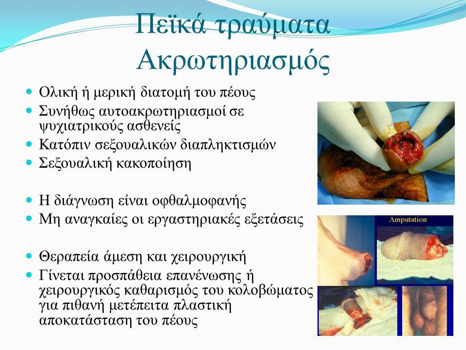  Ολική ή μερική διατομή του πέους  Συνήθως αυτοακρωτηριασμοί σε ψυχιατρικούς ασθενείς  Κατόπιν σεξουαλικών διαπληκτισμών  Σεξουαλική κακοποίηση  Η διάγνωση είναι οφθαλμοφανής  Μη αναγκαίες οι εργαστηριακές εξετάσεις  Θεραπεία άμεση και χειρουργική  Γίνεται προσπάθεια επανένωσης ή χειρουργικός καθαρισμός του κολοβώματος για πιθανή μετέπειτα πλαστική αποκατάσταση του πέους Πεϊκά τραύματα Ακρωτηριασμός