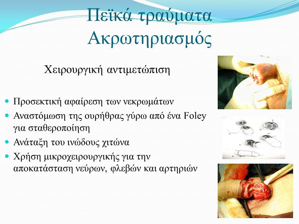 Χειρουργική αντιμετώπιση  Προσεκτική αφαίρεση των νεκρωμάτων  Αναστόμωση της ουρήθρας γύρω από ένα Foley για σταθεροποίηση  Ανάταξη του ινώδους χιτώνα  Χρήση μικροχειρουργικής για την αποκατάσταση νεύρων, φλεβών και αρτηριών